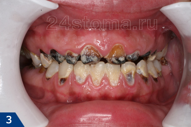Как понять что молочный зуб испортился