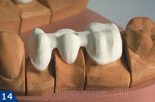 Как сделать своими руками макет зуба 18
