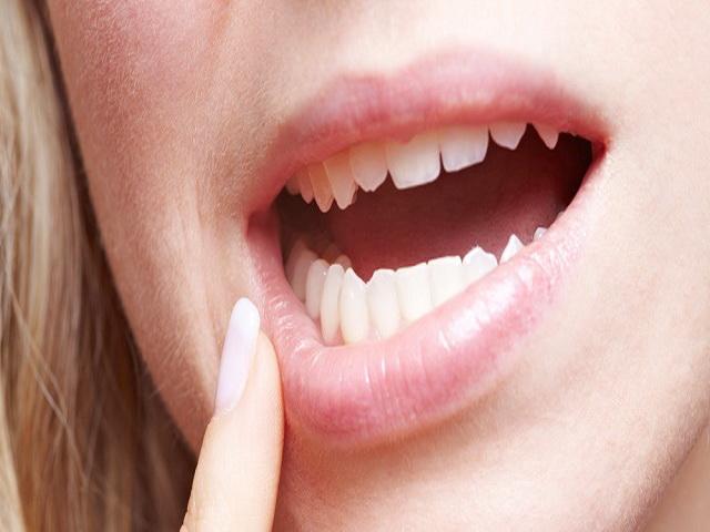 После удаления зуба мудрости болит десна почему 124
