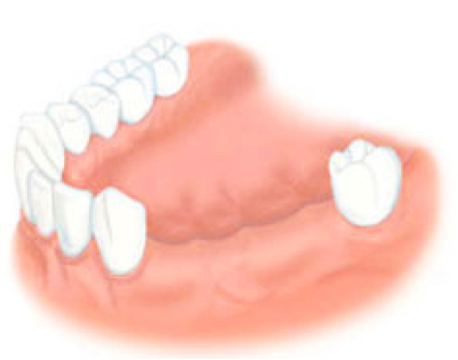 Налет на языке после удаления зуба мудрости