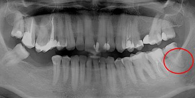 Запломбировала зуб болит десна