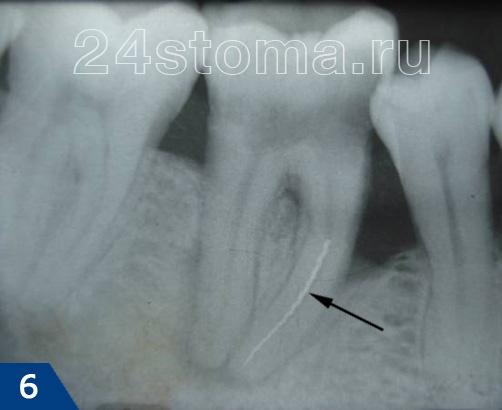 Снимок мертвого зуба