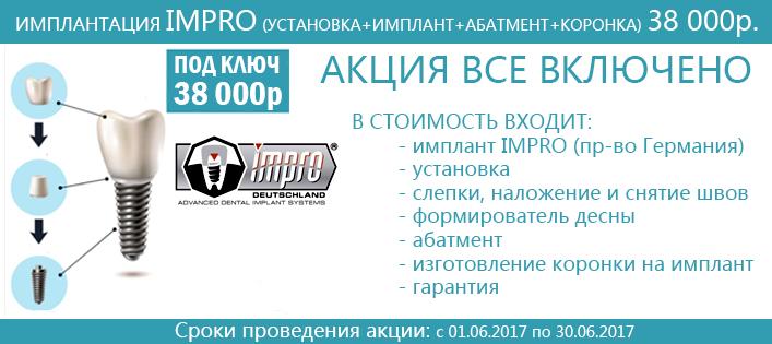 Зубные импланты имплантанты цены в Москве имплантация