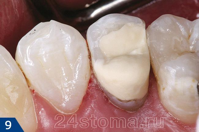 Мертвый зуб что с ним можно сделать