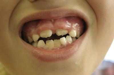 Что делать если зуб опух в домашних